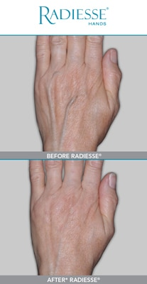 Radiesse® For Hands - Aesthetic Medicine Phoenix