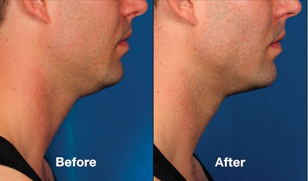 Reducing your double chin with kybella